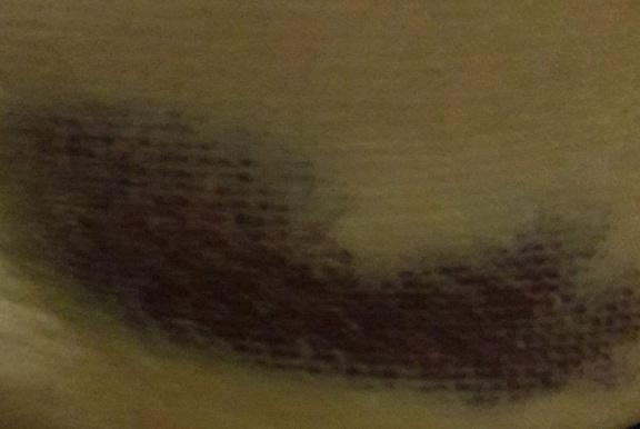 Bruised hip